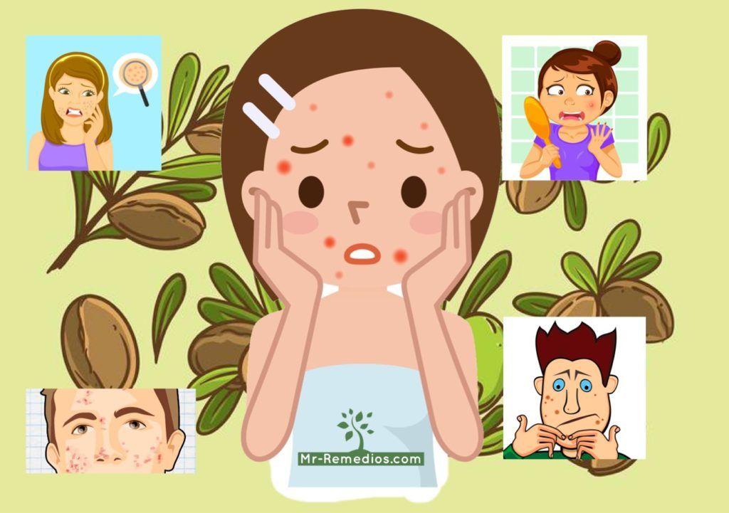 aceite de argan acne